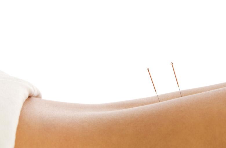 akupunktur-hamburg